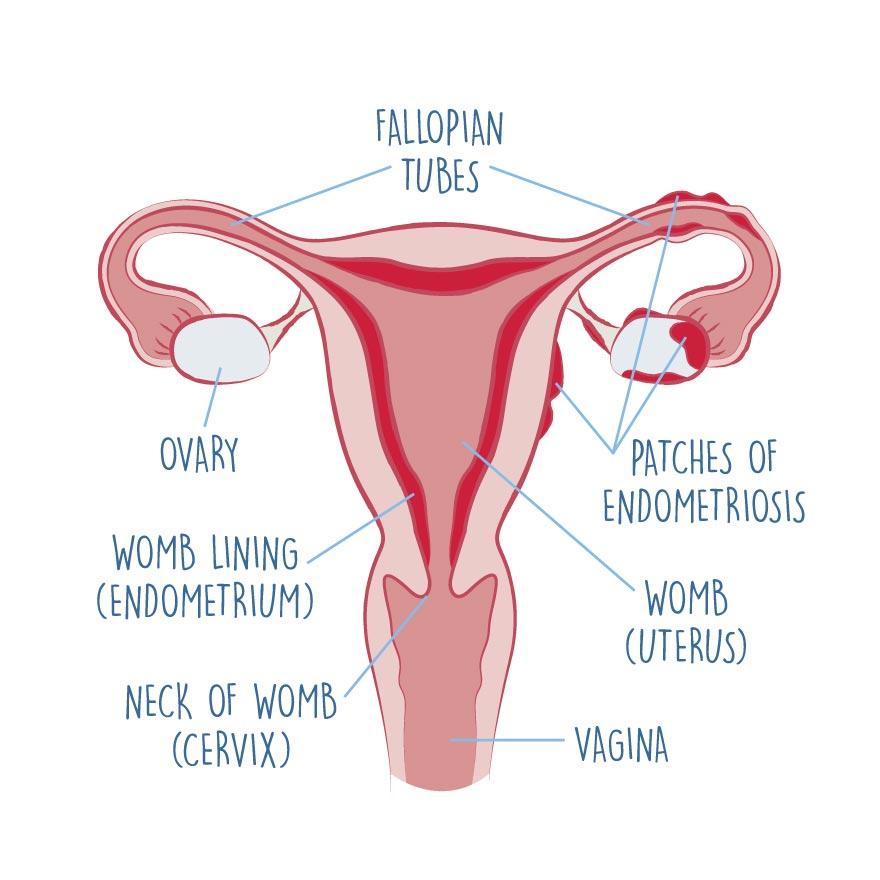 biology-of-endometriosis